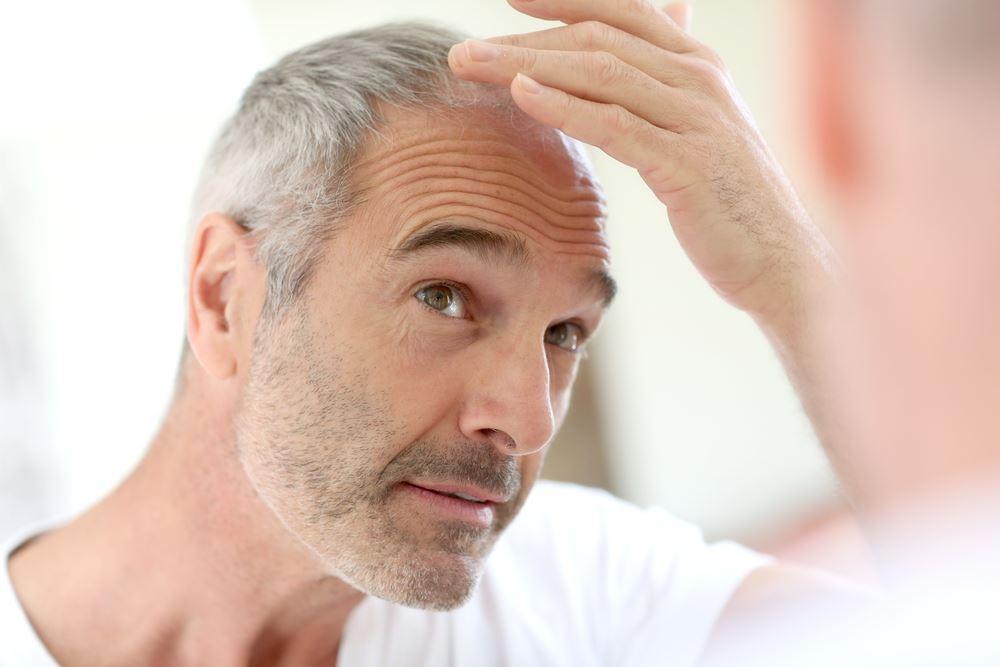 chute des cheveux calvitie