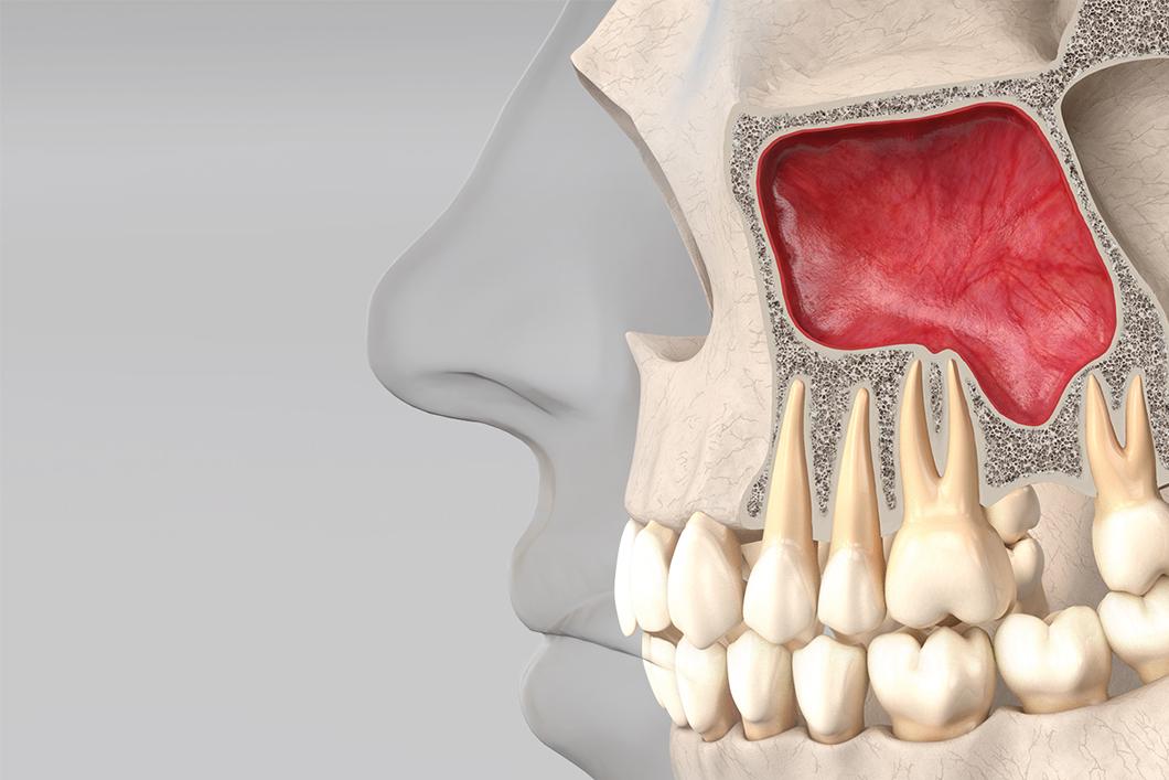 implant court
